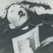 Fotografía de Hitler muerto realizada por su médico personal